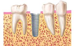fases implantes dentales madrid