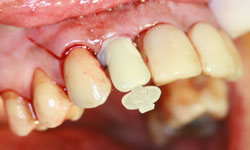 implante dental corona inmediata