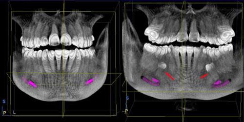 premolares-numerarios-incluidos_14