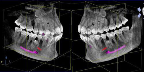 premolares-numerarios-incluidos_15