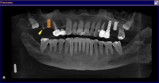 localizacion-raices-escaner-3d-4