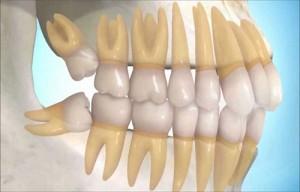 relacion apiñamiento dental por terceros molares
