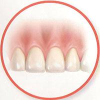 implantes-dentales-inmediatos-5