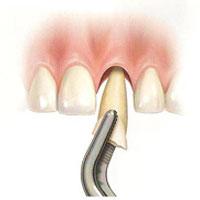 implantes-dentales-no-inmediatos-2