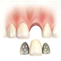 implantes-dentales-no-inmediatos-3