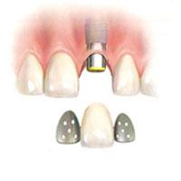implantes-dentales-no-inmediatos-7