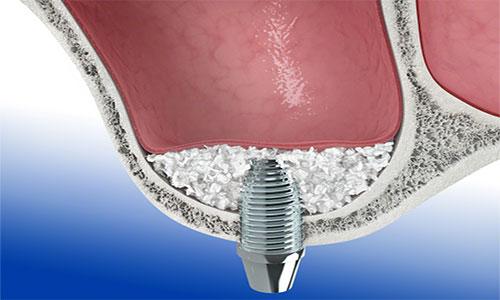tecnicas-regeneracion-osea-elevacion-seno2-dental-Bio-Oss
