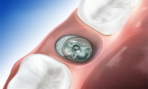 implantes dentales sin cirurgia