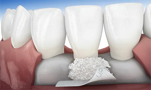 tecnicas-regeneracion-osea-periodoncia-Bio-Oss