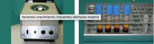 implantes osteointegrados con factores de crecimiento