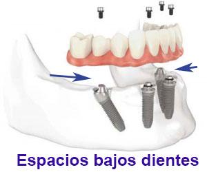 complicaciones implantes dentales espacios bajo dientes
