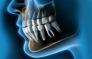 complicaciones esteticas y funcionales implantes dentales