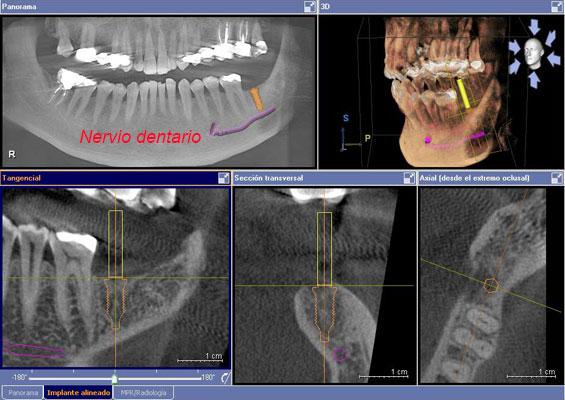 complicaciones implantes dentales nervio dentario
