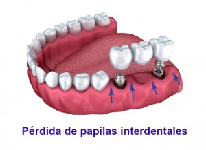 limitacion implantes dentales perdida de papilas