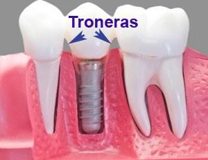 limitaciones implantes dentales troneras