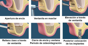 elevacion de seno quirurgica para implantes dentales