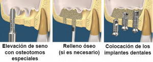 elevacion de seno simple para implantes dentales
