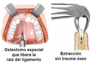 extraccion atraumatica dental en implantes dentales dificiles