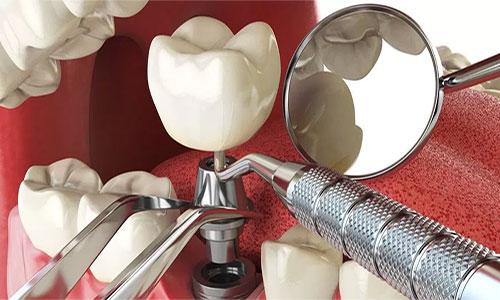 implantes dificiles solucion situaciones complejas