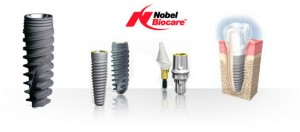 implantes nobel biocare de calidad en Madrid