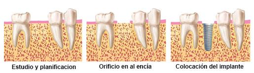 nuestras tecnicas implantes dentales sin cirugia