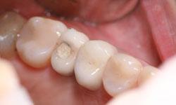 higiene de implantes dentales limpieza de los implantes dentales