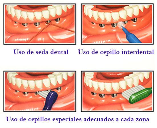 higiene bajo protesis sobre implantes dentales