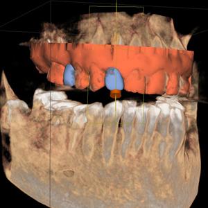 implante sin cirugia