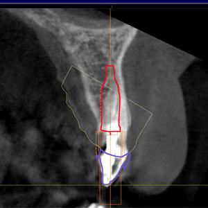 implantes dentales sin cirugia